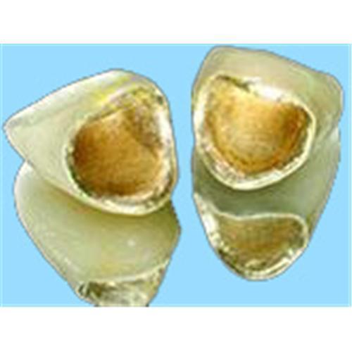 Quality Au PFM denture for sale