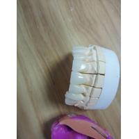 Zirconia Crown Outsource To China